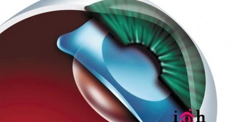 Implante de Lente VISIAN ICL