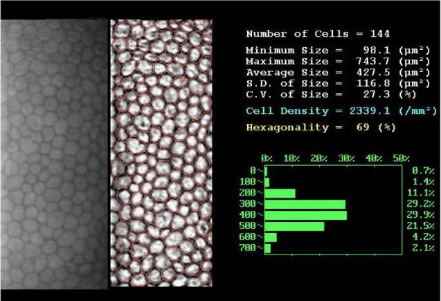 Microscopía Especular