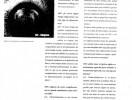 cirugia refractiva  punto de vista-3