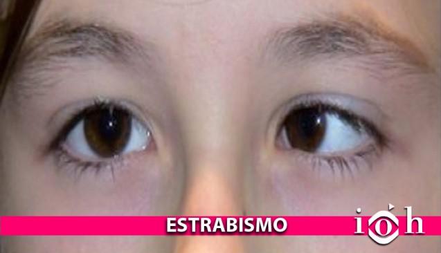Instituto Oftalmológico Hoyos. La vista. El estrabismo.