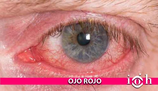Instituto Oftalmológico Hoyos. La vista. El ojo rojo.